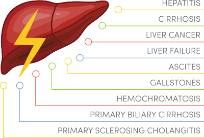 different-types-of-fatty-liver-disease