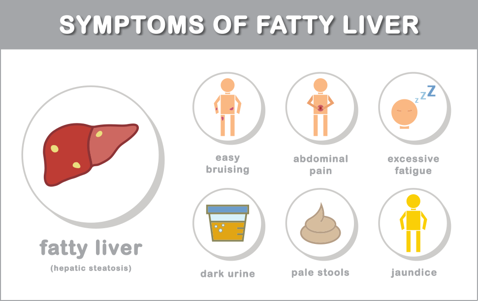 Fatty liver diet guide symptoms of fatty liver disease ccuart Gallery