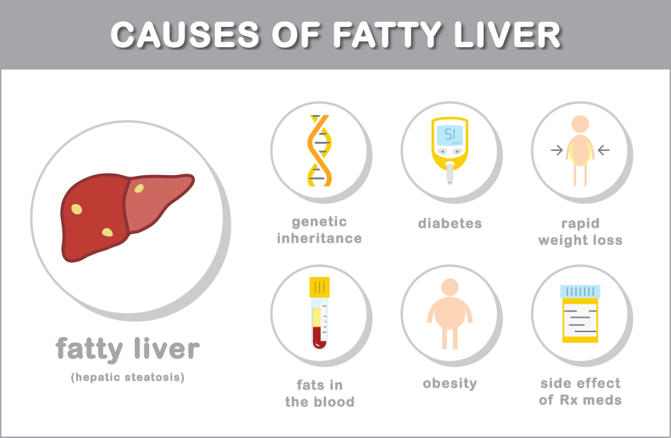 the-causes-of-fatty-liver-disease